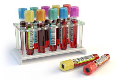 Abnehmen mit einer Blutuntersuchung SALOMED-Test